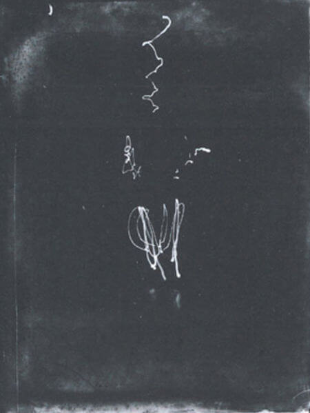 Etienne-Jules Marey y George Demeny. Pathological_Walk from the Front